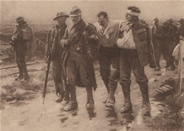 British & French wounded Maricourt July 1916